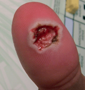 Surgical Wart Removal From Thumb