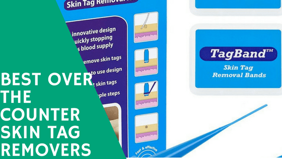 A Look At The Best Over The Counter Skin Tag Removers